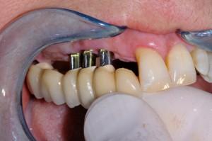 prémolaires et molaires