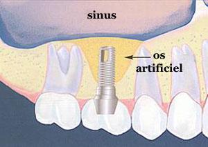 greffe dentaire
