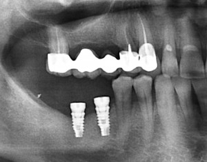 implants multiples