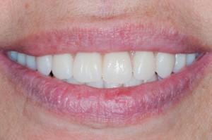 belles dents