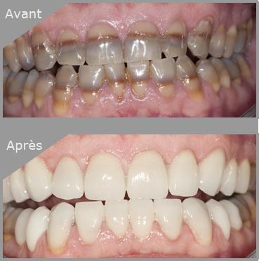 Avant/Après - Facette dentaire à Saint Laurent du Var