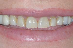 teinte de vos dents